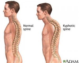 IMAGE Illustration of a man with a normal spine and with a kyphotic (rounded or hunched) spine. IMAGE