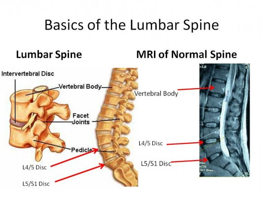 IMAGE Diagram featuring the basics of the Lumbar Spine. IMAGE